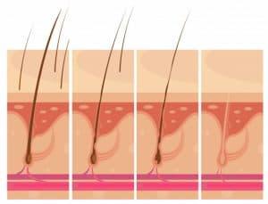 איור גדילת שיער
