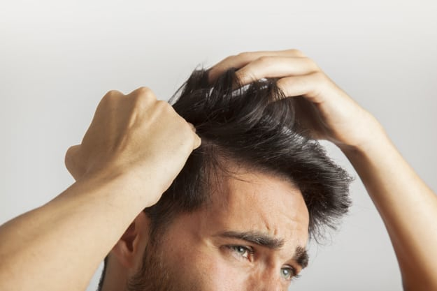 השתלת שיער לגברים מחיר