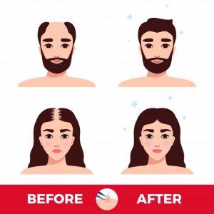 איור השתלת שיער